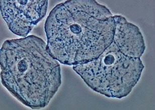 ¿Cómo toman decisiones las células?