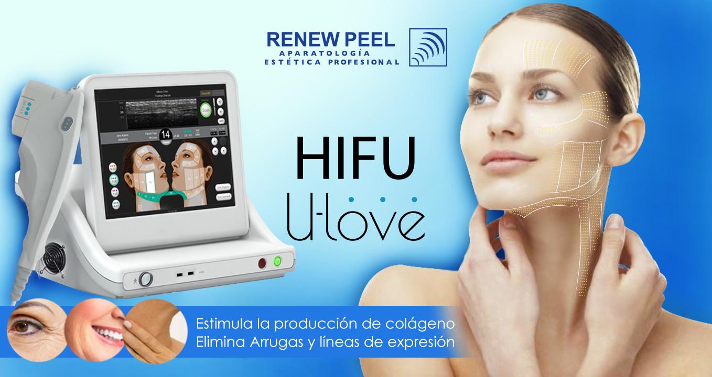 HIFU U-love Ultrasonido Focalizado de Alta Intensidad
