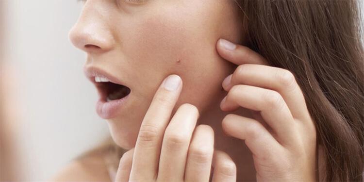 Factores que generan acné