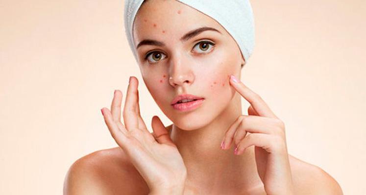 Cambios hormonales ¿cómo afectan la piel?