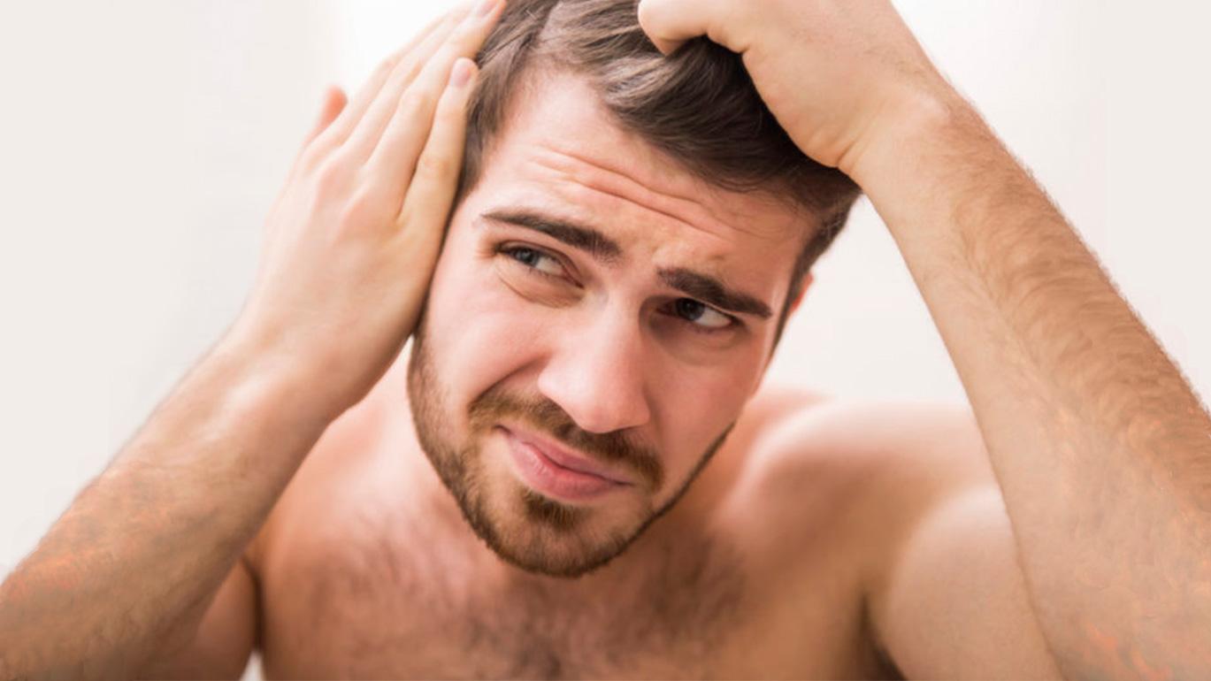 Tratamientos para evitar la alopecia masculina