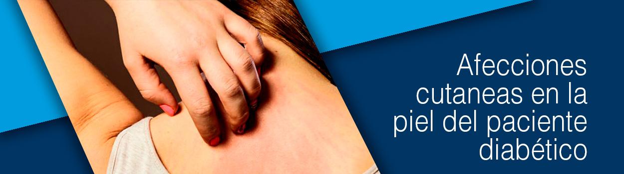 Afecciones cutaneas en la piel del paciente diabetico