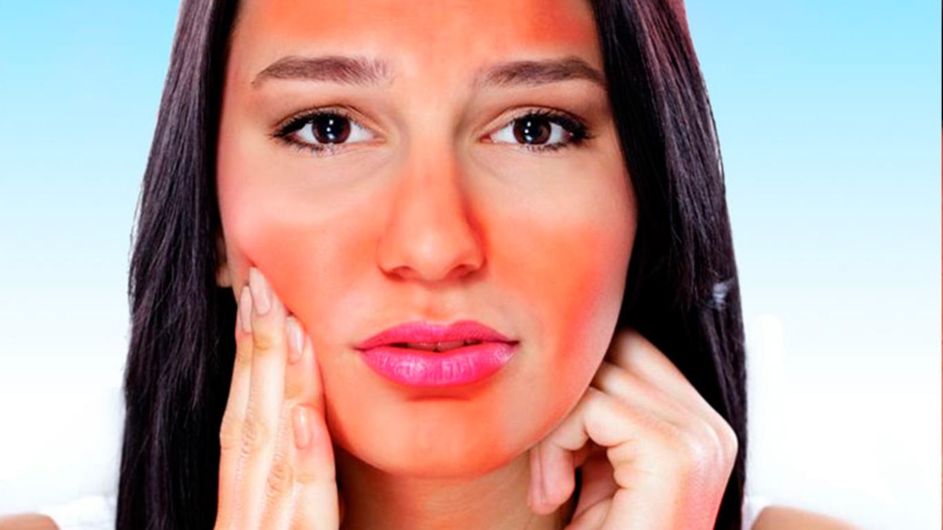 quemaduras-faciales-manejo-y-tratamiento