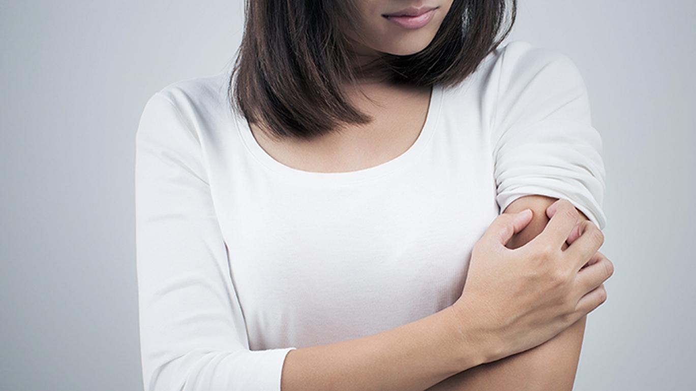 ¿Que es y como tratar un eczema?