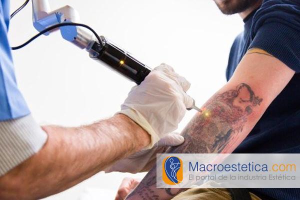 Eliminación de tatuajes, el nuevo procedimiento con láser y ultrasonido