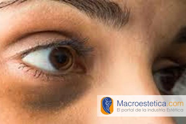 Ojeras ó Bolsas Perioculares. Diferencias y sus tratamientos adecuados