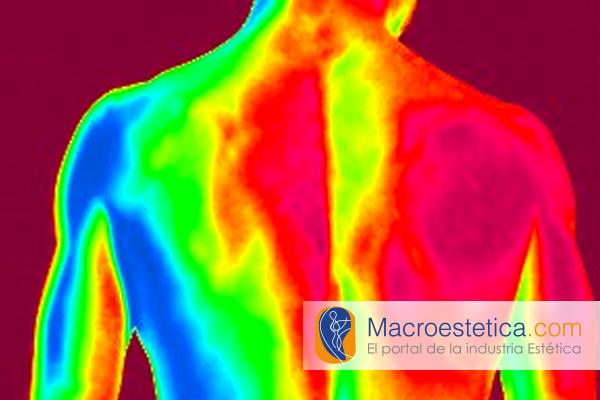 Termoterapia, calor y frio