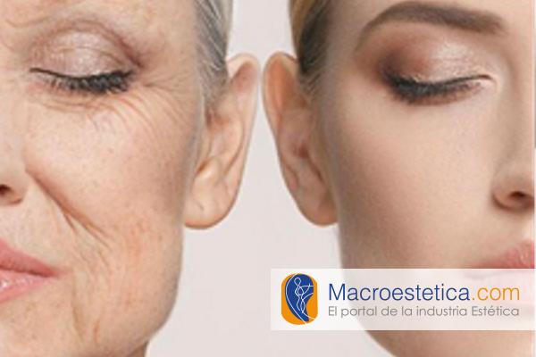 Efecto anti envejecimiento tratando la MEC, con Acido Hialurónico