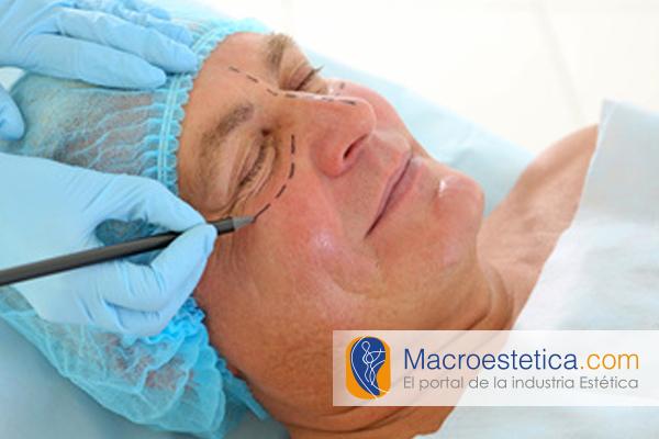 Blefaroplastia en adultos mayores, el rejuvenecimiento de párpados en hombres