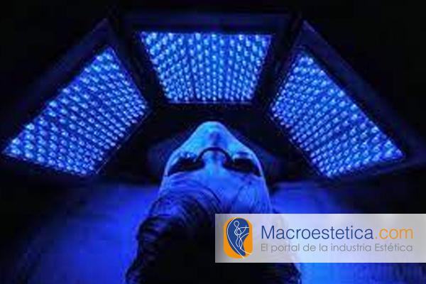 Acné y su tratamiento con diferentes tipos de luz