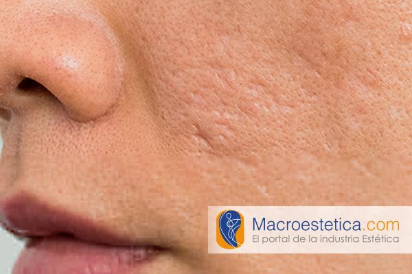 Manejo del acné y las cicatrices del acné