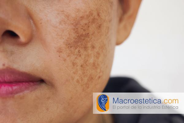 Microaguja para el melasma