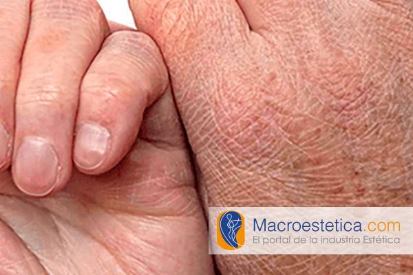 ¿Qué ayuda realmente con la piel seca?