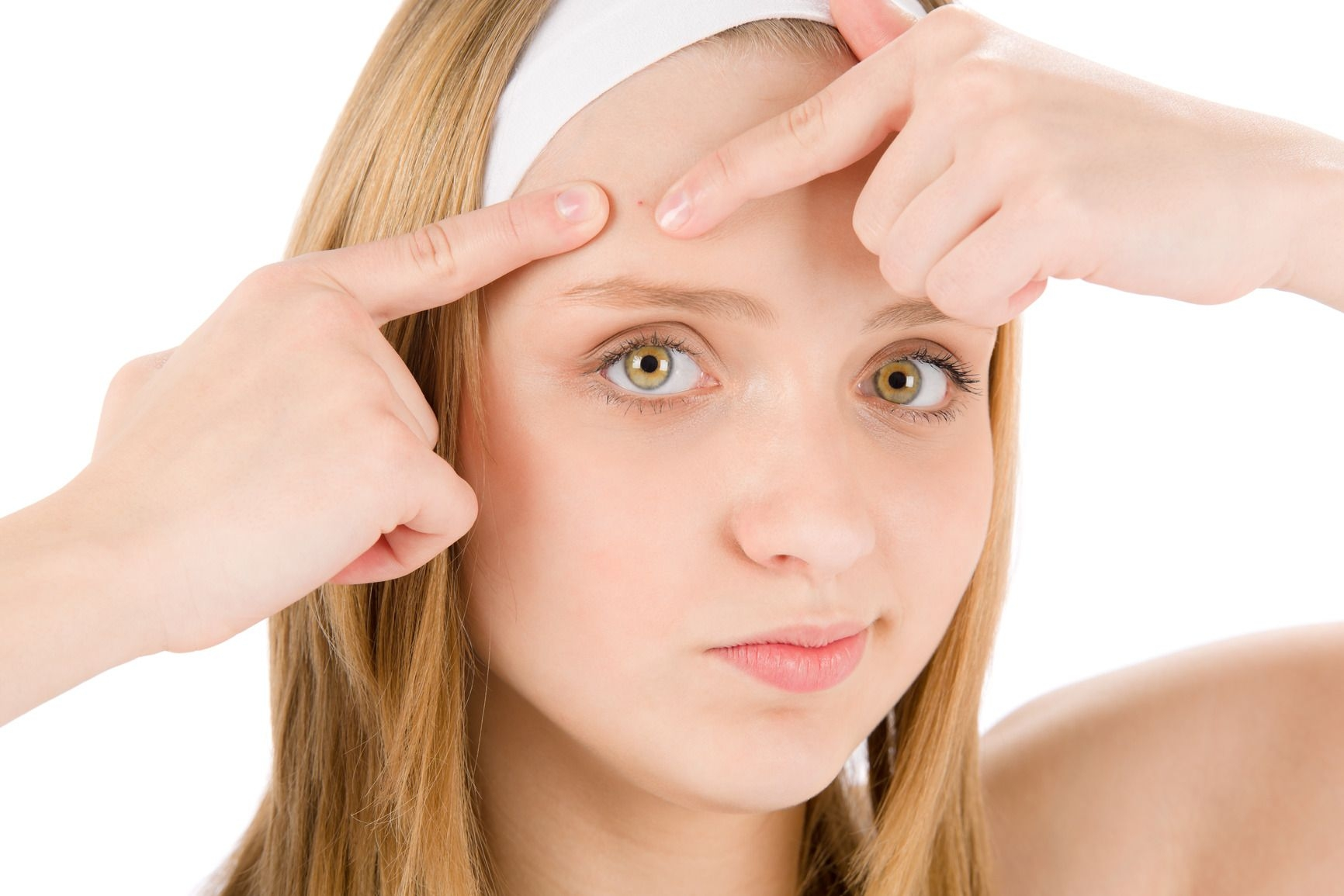 Importancia de la dieta en el acné
