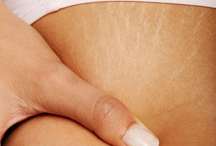 Tratamiento estético y cosmético de las estrías