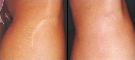 Tratamiento de cicatrices de larga evolución