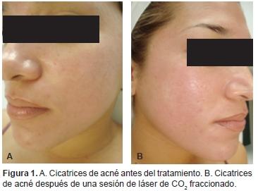 Uso de láser de CO2 fraccionado para el tratamiento de cicatrices faciales atróficas de acné