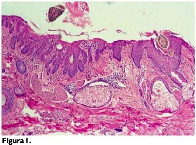 Foliculitis y Pseudofoliculitis