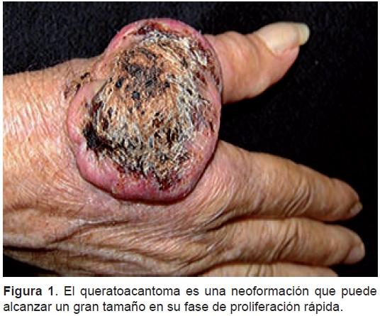 Queratoacantoma: ¿pseudocáncer o carcinoma epidermoide?