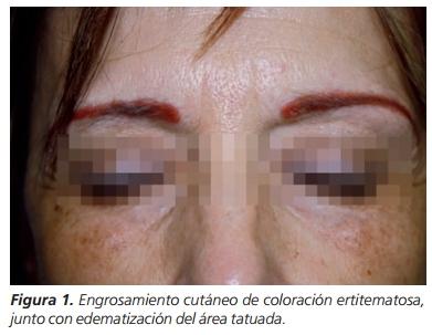 Reacción granulomatosa a tatuaje permanente de las cejas