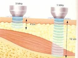 Hidrolipoclasia Ultrasónica