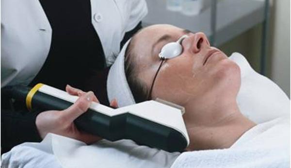 Luz Intensa Pulsada IPL para el tratamiento de lesiones pigmentarias