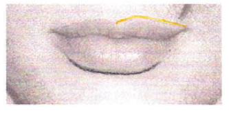 Técnicas previas a la micropigmentación de labios