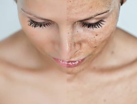 Tecnologías para borrar las manchas de la piel