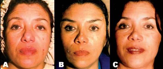 """La técnica """"Face up"""": lifting facial mini-invasivo con hilos tensores"""