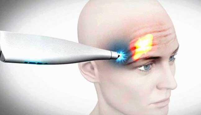 Frotox: un nuevo tratamiento contra el envejecimiento