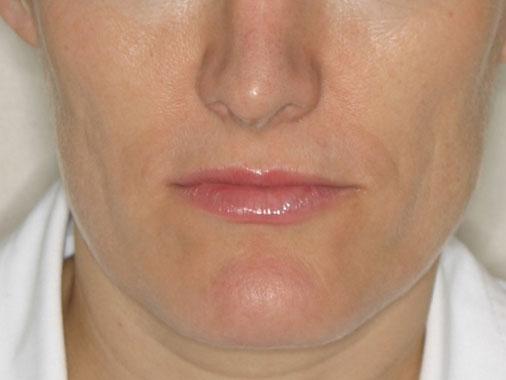 La mesoplastia facial combinada con IPL y radiofrecuencia