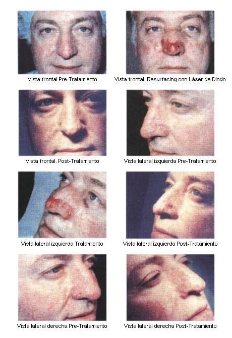 Manifestaciones cutáneas del síndrome de Pringle y su tratamiento