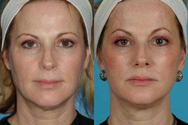 Rejuvenecimiento facial con láser de erbio