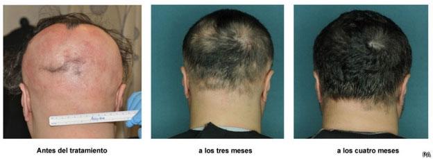 Medicamento revierte pérdida del cabello en un tipo de alopecia