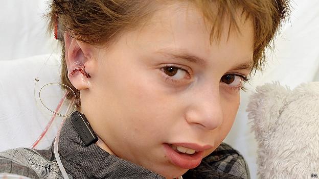 Crean orejas para un niño a partir de sus costillas