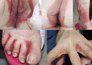 Eritema necrolítico migratorio como marcador de síndrome del glucagonoma