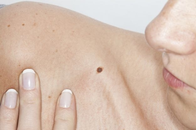 EEUU aprueba un nuevo fármaco para el melanoma avanzado