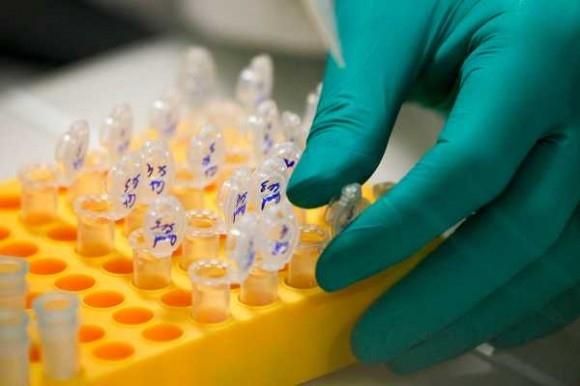 Descubren una proteína que ayudará a detectar formas agresivas de cáncer