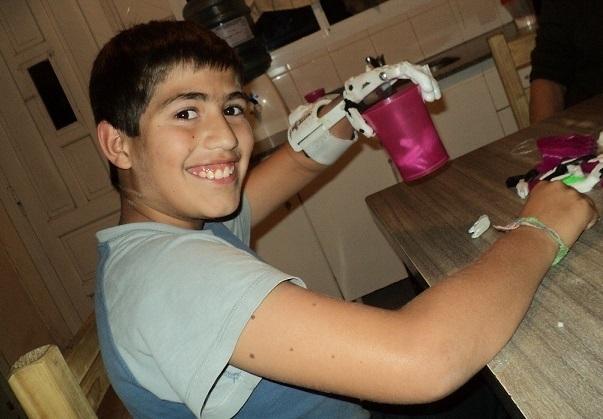 Crean una prótesis de mano usando una impresora 3D