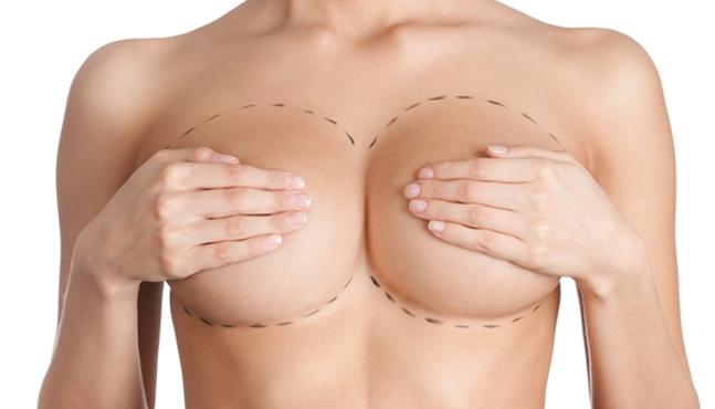 Aumento de senos con células madre