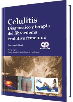 Celulitis Diagnóstico y Terapia del Fibroedema Evolutivo Femenino