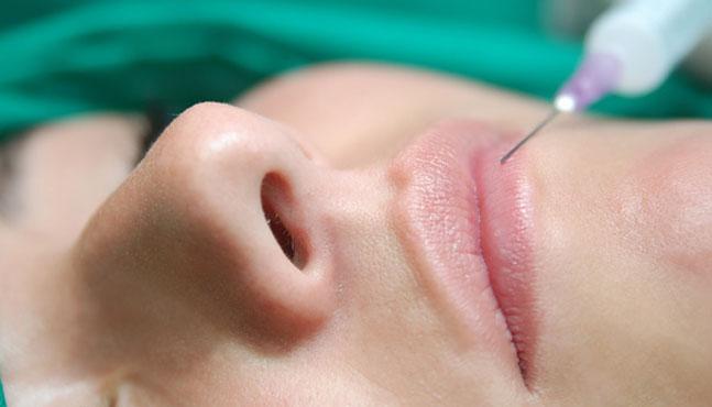Comisuras bucales: tratamiento con Botox