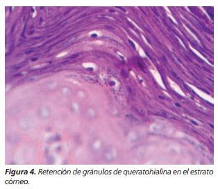 Paraqueratosis granular inguinal