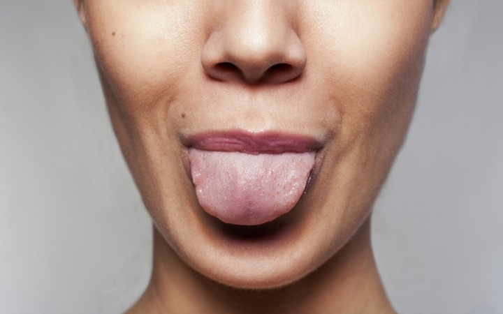 5 razones por las que te urge limpiarte la lengua