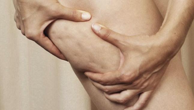 Lipoedema: Desde la presentación clínica a la terapia