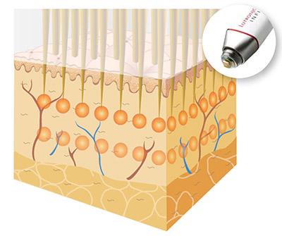 Radiofrecuencia, el tratamiento definitivo para la hiperhidrosis axilar