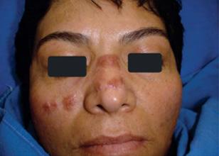 Granuloma facial