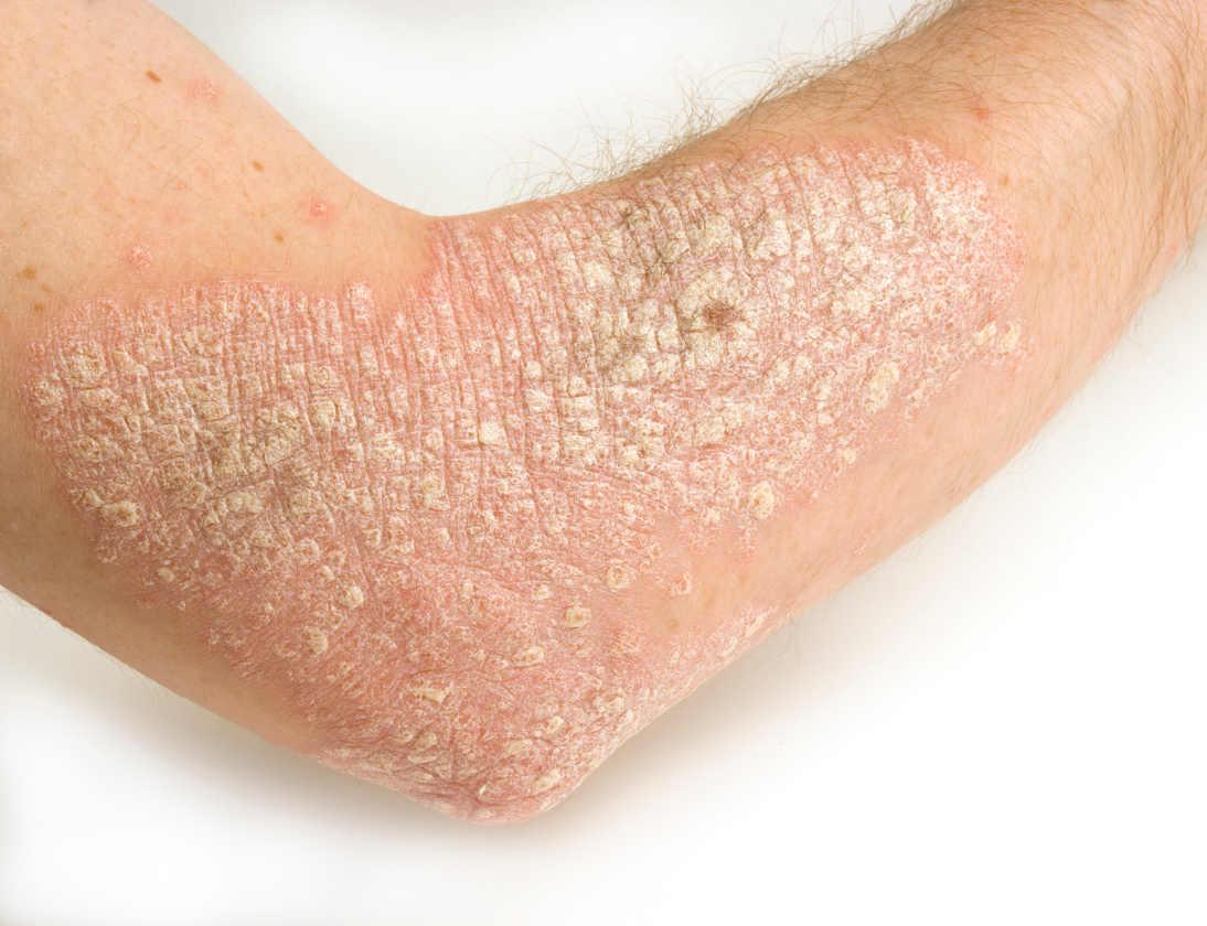 Eficacia de la pioglitazona versus metotrexato en el tratamiento de la psoriasis moderada-grave