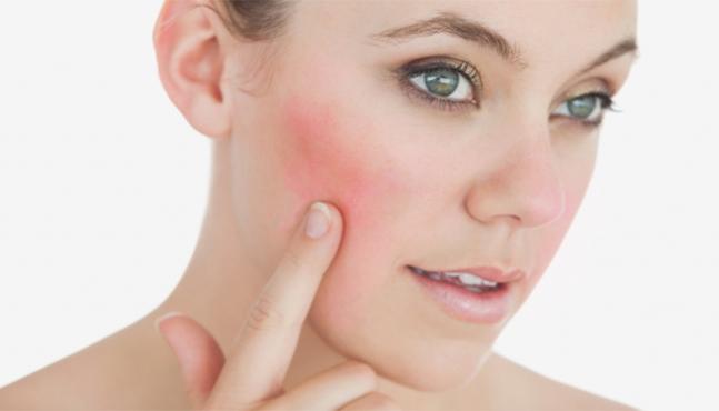 Brimonidina, un nuevo tratamiento para el enrojecimiento facial en la rosácea