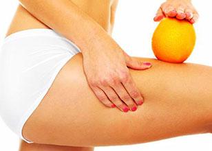 Celulitis, métodos para su tratamiento